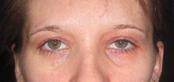 аллергия на коже покраснение зуд