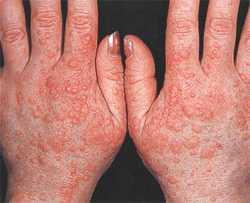 Холодовая аллергия симптомы и лечение