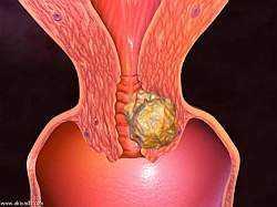 Рак шейки матки признаки