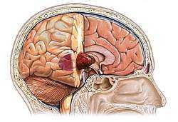 Признаки опухоли головного мозга