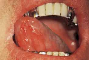 Герпетический стоматит у взрослых