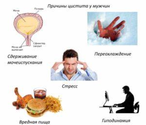 Лечение цистита простатита уретрита
