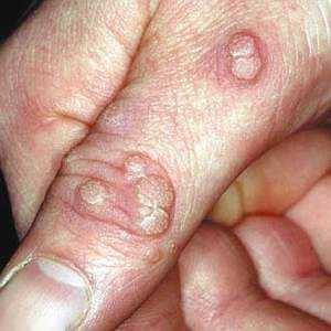 Как выглядят бородавки на пальцах рук