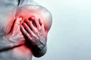 Межреберная невралгия симптомы