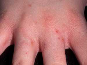 Заболевание ног рожа и лечение