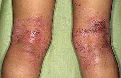 Симптомы атопического дерматита у ребенка