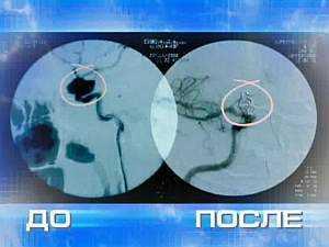 Эндоваскулярная операция аневризмы мозга