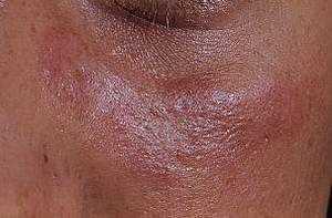 Системная красная волчанка симптомы и лечение