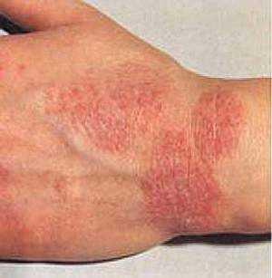 Потница у детей фото симптомы лечение и профилактика