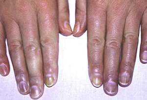 Синдром Рейно: симптомы, лечение