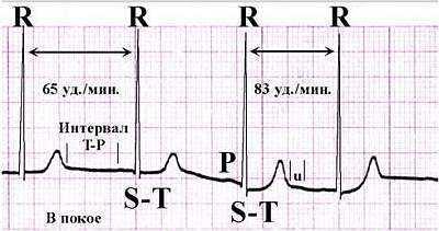 что значит синусовая аритмия