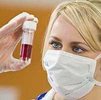 Симптомы ВИЧ инфекции, механизм развития болезни, СПИД-диссидентство