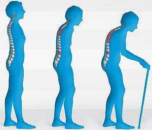 Причины и симптомы остеопороза