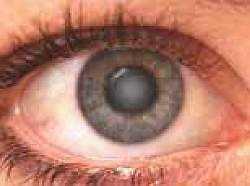 Катаракта: симптомы, лечение, причины, Азбука здоровья