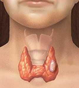 Рак щитовидной железы симптомы у кого был