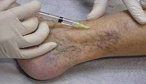 Тромбофлебит: симптомы, лечение