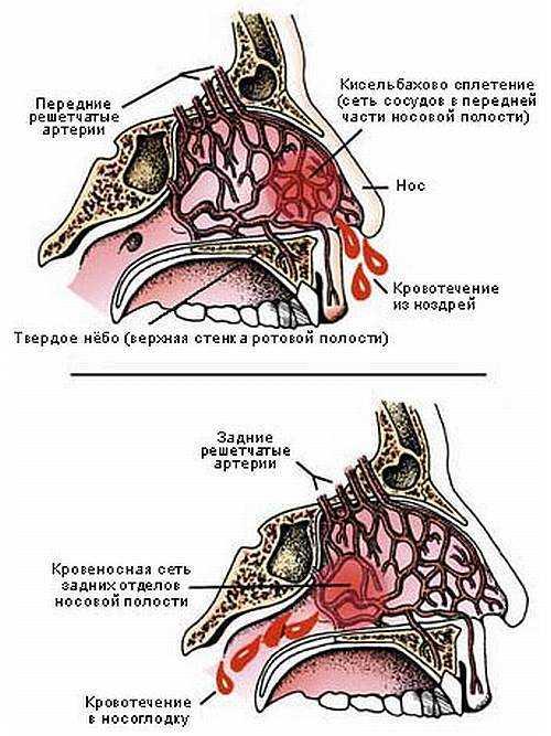 Кровотечение из носа: прчины носового кровотечения у детей и ...