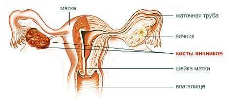 Поликистоз яичников: симптомы, лечение, возможность забеременеть, Азбука здоровья
