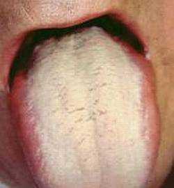 Трещина губы причины и лечение