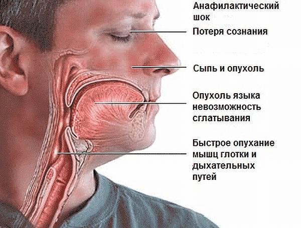 Анафилактический шок первая медицинская помощь