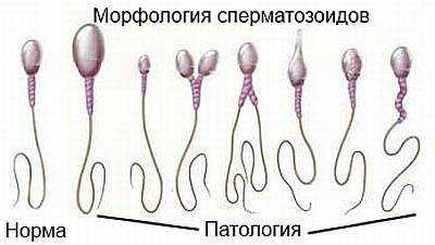 При полюциях сперма темного цвета