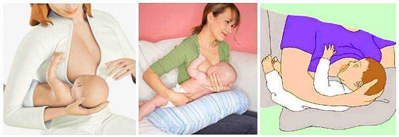 Имплант грудной цена москва
