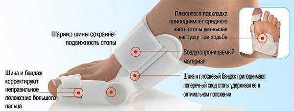 Ортопедические фиксаторы для косточек на ногах