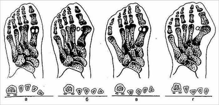 Болезнь косточки большого пальца ноги
