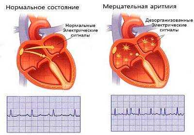 Як відновити серцевий ритм
