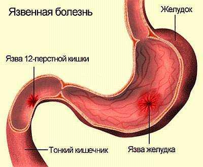 Рубцово-язвенная деформация лдпк больничный лист Справка 086 у Южный административный округ