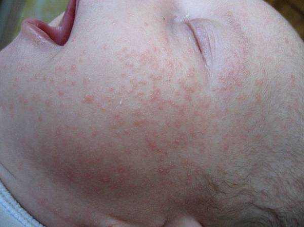 Сыпь у ребенка от высокой температуры фото