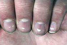 Пятна на ногтях что означают 24