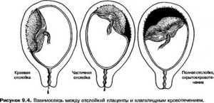 Отслоение плаценты на ранних сроках беременности последствия