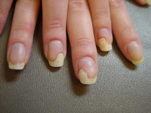 как укрепить ломкие ногти