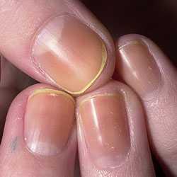 ногти тонкие