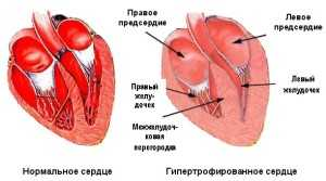 Что такое гипертрофия миокарда левого желудочка сердца