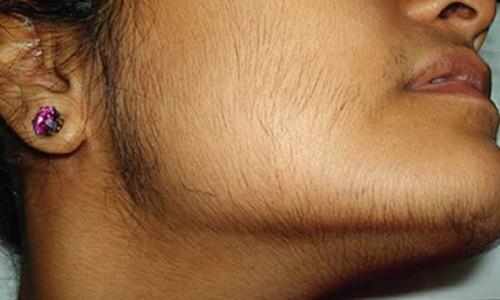 Волосы у женщин на лице