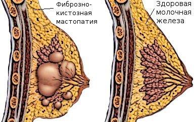 Шампунь биодерма при выпадении волос