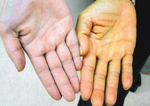 Что такое синдром жильбера