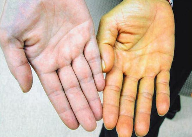 Время лечения гепатит с