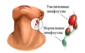 Воспаление шейного лимфоузла на шее