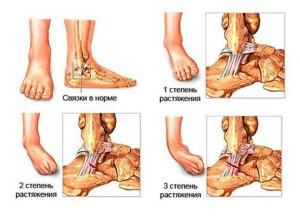 Травма голеностопа лечение