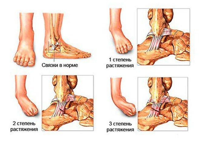 гелевые вкладыши для плюснефаланговых суставов