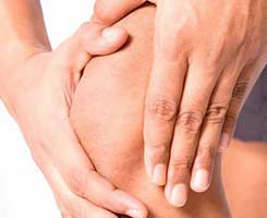 Умеренный синовит коленного сустава