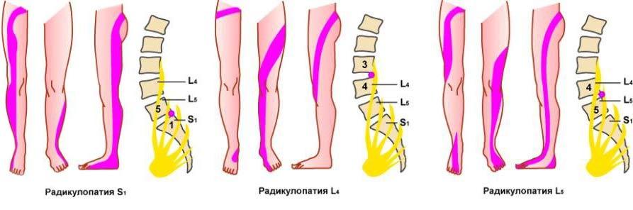 Боли в спине онемение ног