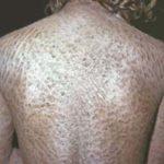ихтиоз кожи лечение