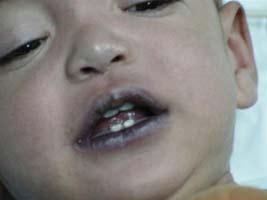 почему синеют губы у ребенка
