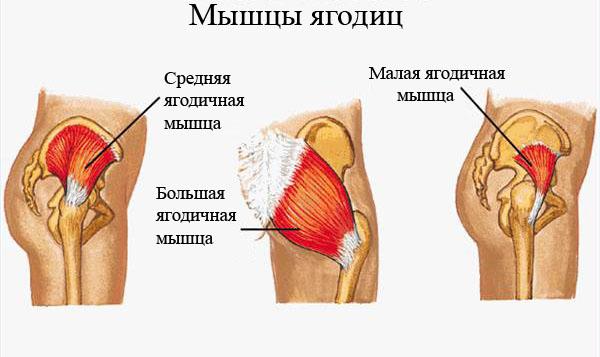 Тазобедренный сустав боль в ягодице дисплазия тазабедренных суставов