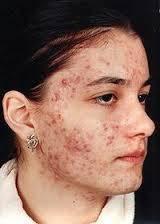 лечение демодекоза у человека