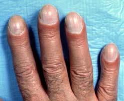 синдром барабанных палочек при муковисцидозе